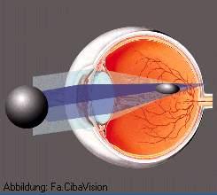 Die Mittel gegen die schwarzen Kreise unter den Augen die Rezensionen